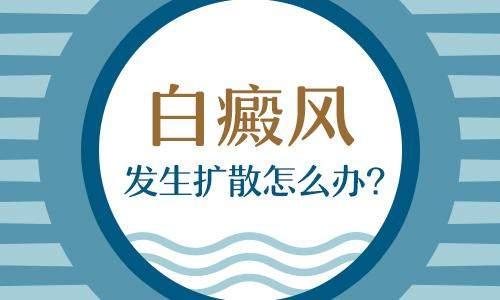 <a href=http://www.ganjimas.com/ target=_blank class=infotextkey>昆明白癜风医院</a>效果好:面部白癜风扩散怎么办呢?